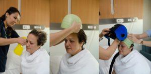 meme kanserli hastalarda fda onaylı dignicap ile kemoterapiye bağlı saç kaybı önlenebilir